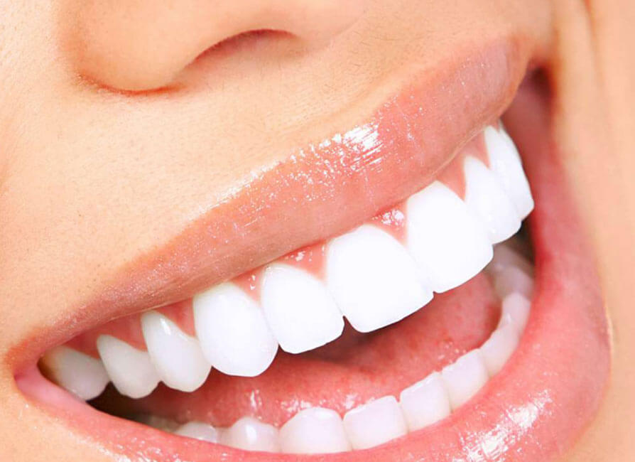 Composite Esthetic Fillings Service